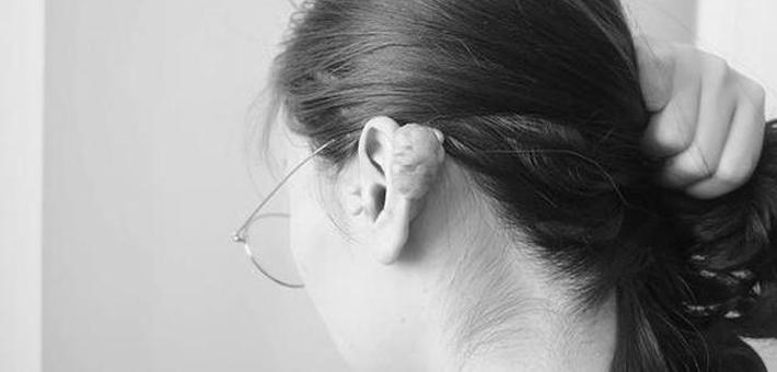 女子扎耳洞耳朵后面长了鹅蛋大的疙瘩