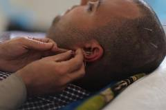 Patients receive Chinese acupuncture treatment around the world
