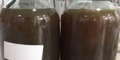 深圳男子腹痛住院 抽出两瓶黑血