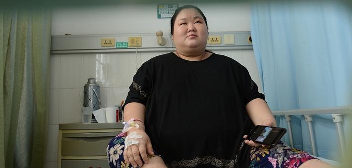 体重270斤 湖北最重产妇惊险产子