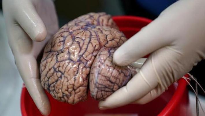 大脑银行:冷冻人脑用电锯切片保存