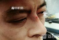 南京一水果店店家暴力抗法 将城管队长眼眶打青