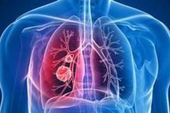 实时更新|新型冠状病毒肺炎全国疫情地图