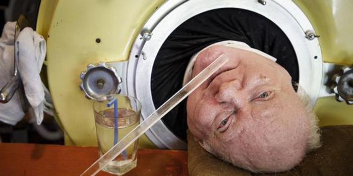"""美国男子躺""""铁桶""""67年:只能露出头却成律师(图)"""