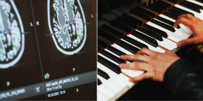 意大利患者手术时弹钢琴 清醒时切除脑部肿瘤