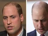 威廉王子头顶剃光直面脱发问