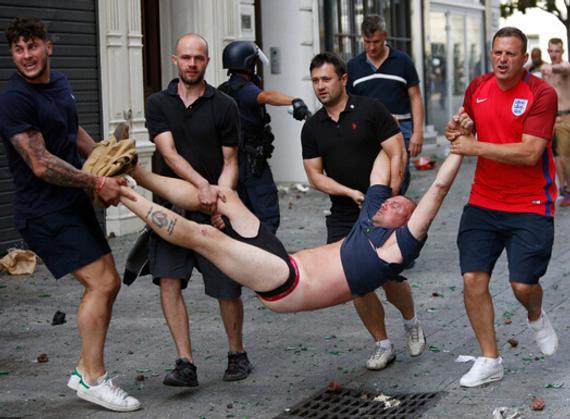 被打伤抬走的英格兰球迷