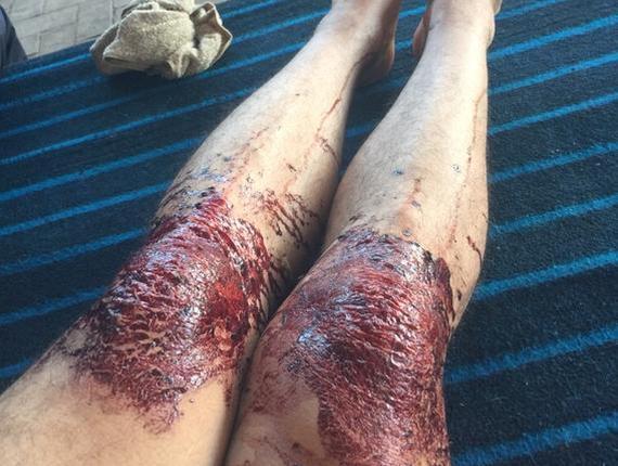 西热力江双膝看上去就像血肉模糊一般