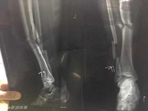 夏润涛腿部X光片