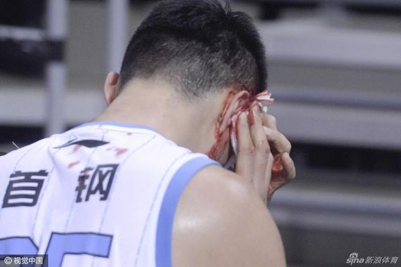 张松涛头部受伤