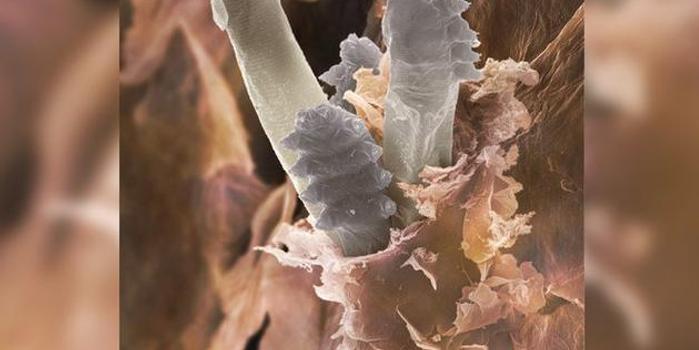 你知道吗?脸上的毛孔中可能生活着大量螨虫