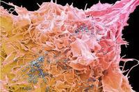 研制四十年,年耗8億美元的HIV疫苗何時能真正問世?
