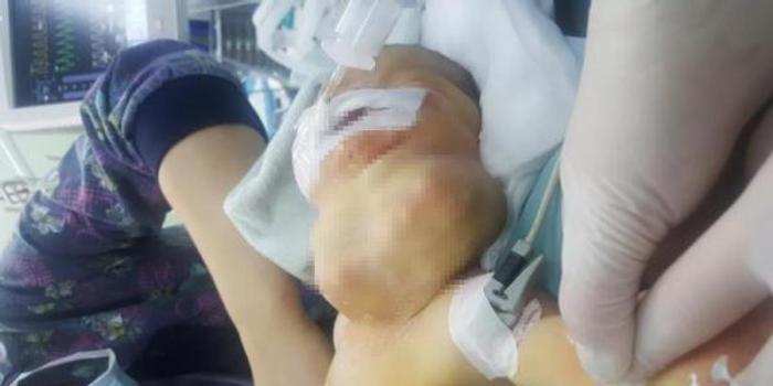 """新生儿颈部挂另一个""""脑袋""""呼吸困难 实为肿瘤"""