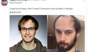 《英雄联盟》设计师晒入职近6年对比照 变帅变成熟也变秃了!