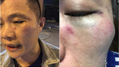 打人事件:一周内两曝暴力事件 乘客安全体验待改善