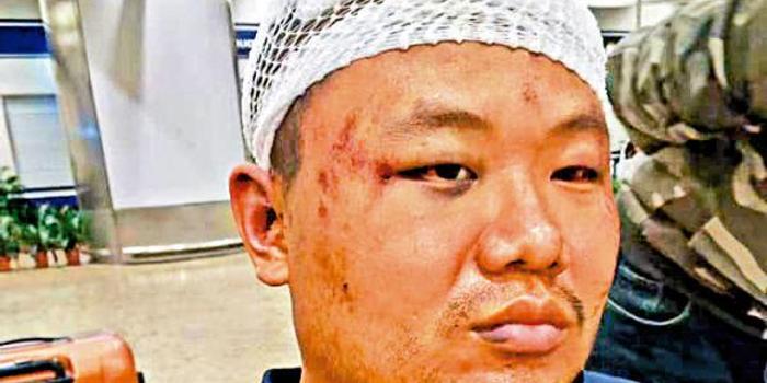 内地青年遭暴徒私刑脑缝60针:感谢港警和医护救援