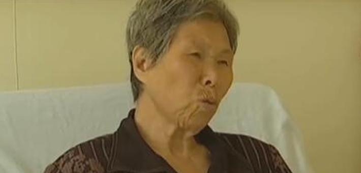 无锡母女吃蟾蜍健体导致中毒