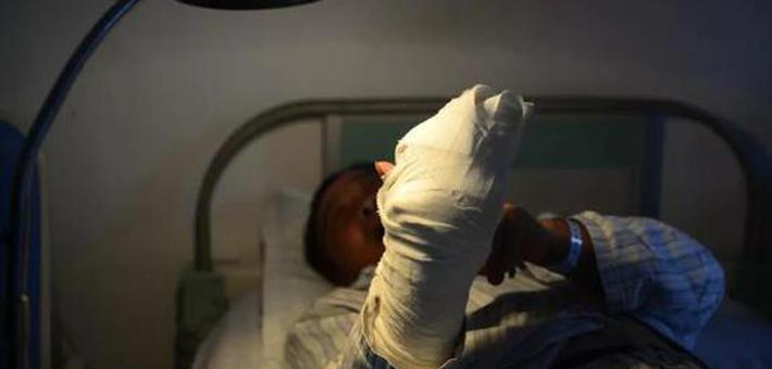 云南大叔手指被截断竟撒尿消毒