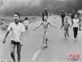 """""""越战照片女孩""""赴美接受皮肤激光治疗"""
