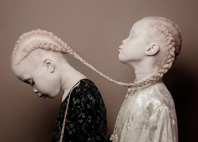 据美国Boredpanda网站4月8日报道,Lara和Mara Bawar并不是传统意义的超模,但是她们的与众不同早已席卷了整个时尚产业。