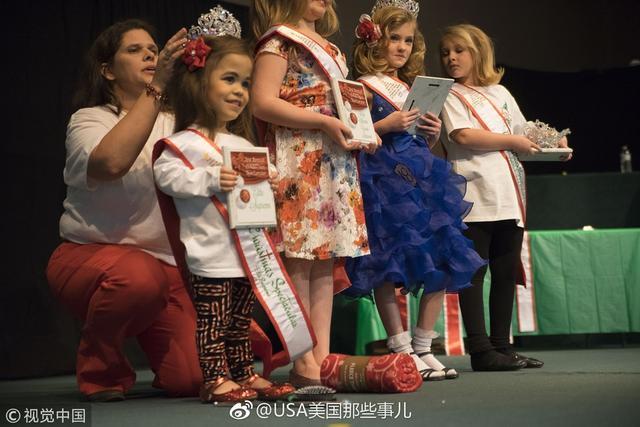 美国有一对小姐妹花,9岁的姐姐软骨发育不全,是侏儒症的一种常见表现。