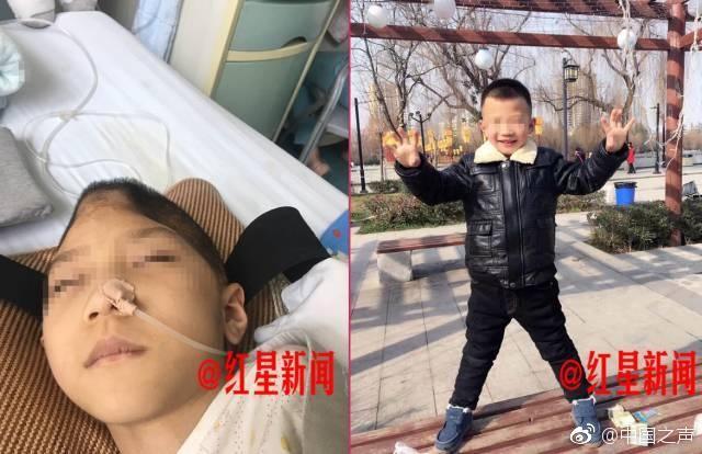 今年3月,陕西渭南6岁男孩鹏鹏被送进了重症监护室,一度心脏骤停。双目视网膜脱落、75%颅骨缺损、2根肋骨骨折、上门牙脱落……医生说,手术时孩子脑内的淤血哗地爆出,场面十分惨烈……鹏鹏的继母因涉嫌虐待罪,已被刑拘。