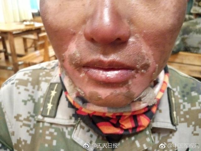 """为备战国际军事比赛""""厄尔布鲁士之环""""项目,西藏军区某合成旅在海拔高达5600米,紫外线极强的地域展开极限训练。虽然做了多重防护,但战士的面部还是被灼伤。战士们的努力,希望全国人民都能看到,除了他们的妈妈。致敬,加油!"""