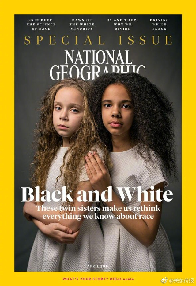 """尽管拥有不同肤色,但11岁的玛西亚和米莉却是一对如假包换的双胞胎,两人一黑,一白,诞生于""""百万分之一""""的奇迹。近日,她们登上了《国家地理》杂志四月刊,现身讲述""""颜色""""不一样的人生。据悉,这对双胞胎出生于2008年7月3日,是一对混血儿,她们的母亲是一名英国白人,父亲是牙买加黑人。"""