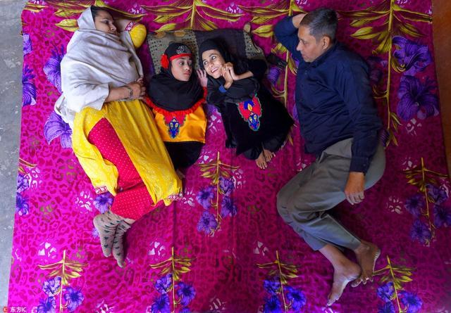 印度姐妹花患成骨不全症,自幼未出家门仍正能量满满