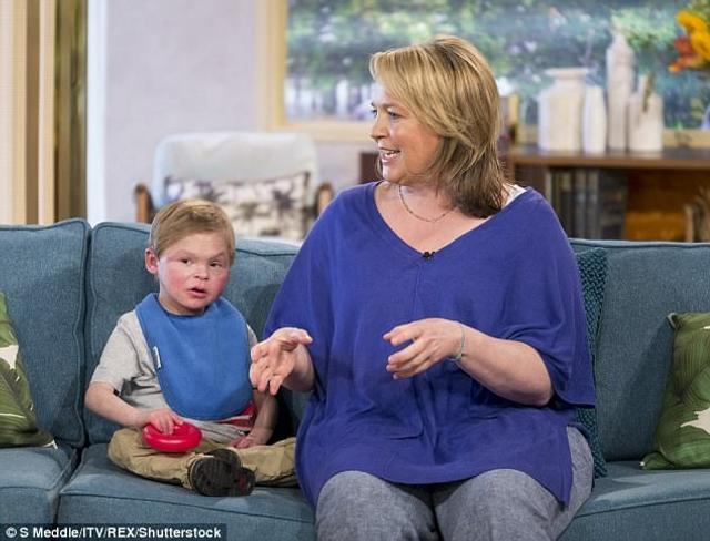 """据英国《每日邮报》8月18日报道,英国一名叫安格斯o帕姆斯(Angus Palmes)的13岁少年外形似婴儿,其母亲称这种罕见情况为""""幸福综合征"""" 。"""