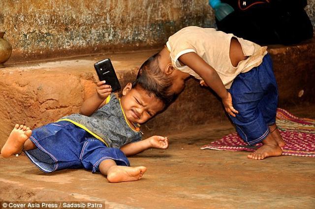 """印度的一对年轻父母在两年前遇上一个""""意外"""",他们的双胞胎宝宝出生时头部竟然连在一起。他们的家庭经济不好,但他们还是希望连体宝宝能接受手术,过上正常人的生活。图为只有2岁的连体宝宝,他们没法像正常小盆友一样玩耍、生活,对这样一个贫穷的家庭来说,养育他们有点困难。"""