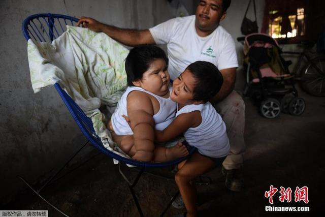 墨西哥特科曼市,Mario Gonzales的儿子10个月大的孩子Luis已经重达28公斤,他的生命由于肥胖和儿童糖尿病而时刻受到威胁。