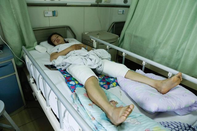 """3个月前,石家庄平山县52岁的康先生工作时不小心掉入高温池,造成全身99%烫伤,30岁的大女儿琳琳决定""""割皮救父""""。"""
