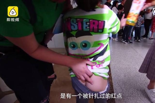 """5月19日报道,18日,浙江桐乡一幼儿园被曝:多名大班学生因""""不听话"""",被老师""""打针""""。经医院检查,幼童皮肤有破损和红点。图为被老师针扎的一名幼童。"""