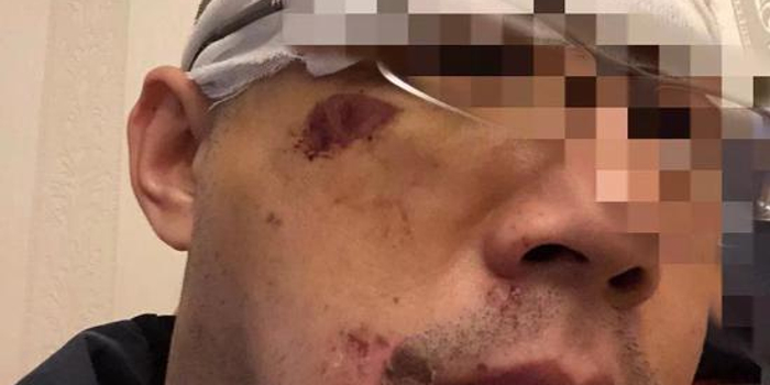 男子稱被滴滴司機毆打眉骨縫十幾針 滴滴回應(圖)