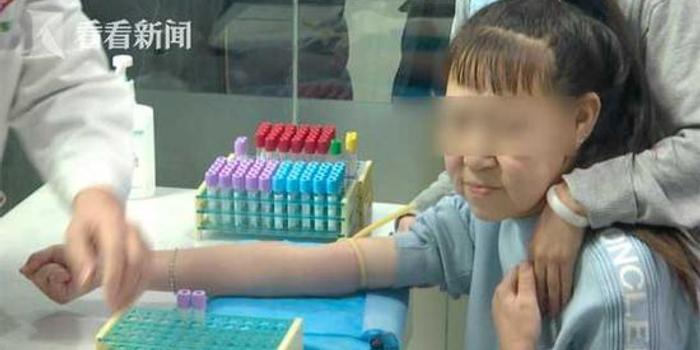 15歲少女長了60歲的臉 不敢曬自拍不去人多的地方