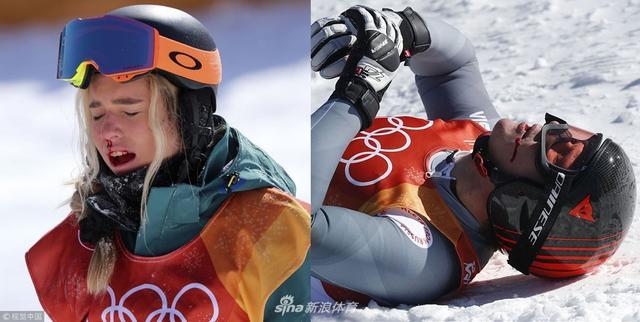 2018年2月13日,2018平昌冬奥会单板滑雪女子U池决赛及高山滑雪男子全能赛赛场相继出现俄罗斯及澳大利亚选手失误受伤情况,澳大利亚选手摔倒受伤。