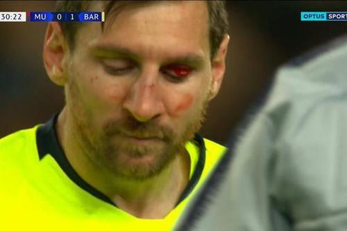梅西吃曼联悍将铁肘 满脸是血