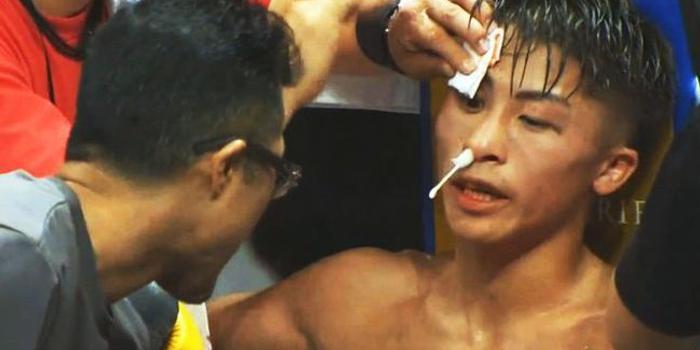 井上尚彌:我被打得看人重影了 多奈爾賽后被送進醫院